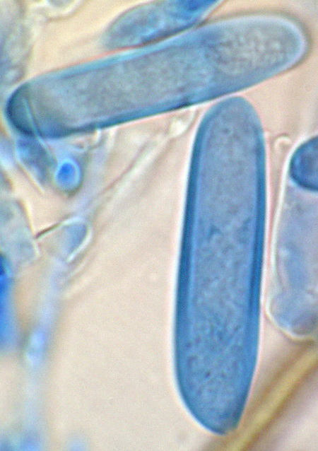 Basidiospores of Corticium murrillii stained with cotton blue. USDA Forest Service