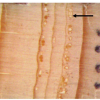 Example of traumatic resin ducts formed during 1997, 1998, and tangentially during 1999, in response to a large spruce beetle outbreak.